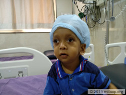 This baby boy will lose his vision without a bone marrow transplant