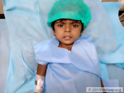 3-year-old Has Abnormal Fluid Collection In Her Stomach