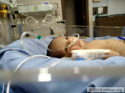 4-day-old Baby Will Suffocate To Death Unless He Has A Surgery