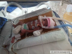 This 1/2kg Baby Girl Is A Fighter Who Is Beating Odds To Survive