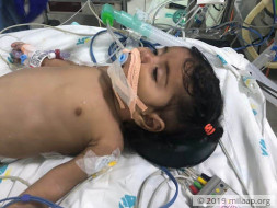 5-month-old Anjali has only 49% Oxygen Level, Needs Heart Surgery