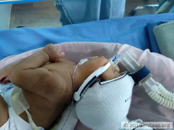 Help baby of Kala Prabha who is in urgent need of a surgery