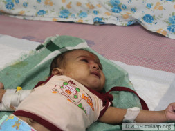 1-month-old baby of Prameela needs a bone marrow transplant