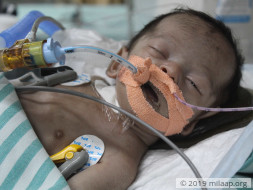 Labourer Will Lose Baby Girl To Multiple Organ Failure Without Help