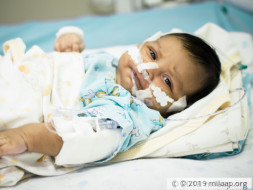 Helpless Mother Is Desperate To Save Her 1-Month -Old From Pneumonia