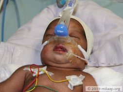 10-Day-Old Baby With A Damaged Brain And Failing Heart Needs Help