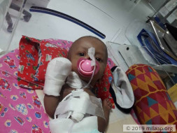 4-months old Baby of Nancy needs your support to undergo his treatment
