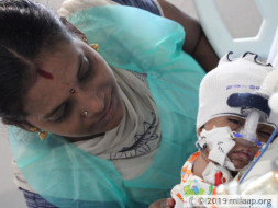 Support 3-months old  Arun to fight cardiac problem