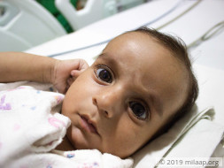 Lung Infection From Severe Heart Disease Will Kill 5-Month-Old Baby