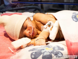 Only An Urgent Surgery Can Save This 11-Day-Old Baby Boy's Life