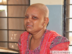 Abandoned By Husband, This Mother Of Two Needs Help To Fight Cancer