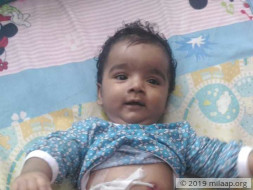 Baby of Siji Sijo needs your help to undergo treatment