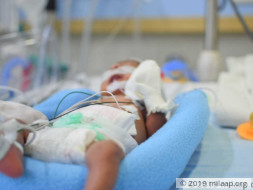Extremely Underweight Newborn Baby Needs Your Help To Survive