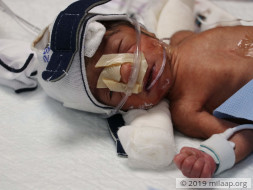 Forced To Stay Apart While Their Newborn Is Critical In The ICU