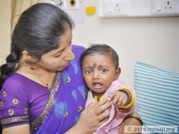 This Baby Cannot Avoid Pain If He Has To Survive, He Needs Your Help