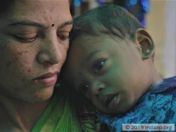 Parents Starve To Feed 1-Year-Old Who Could Die Of Malnutrition
