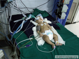 You Can Save This 4-Month-Old Baby Boy From Brain Damage