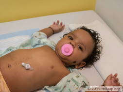This Baby Who Is Fed Through A Hole In His Stomach Needs Surgery