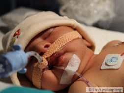 Baby of Rayeesa needs your help to survive
