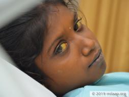 Sivaranjini needs your help to undergo Liver transplant