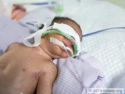 Baby of Arshiya needs your help to survive