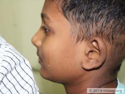 Santhosh needs your help!