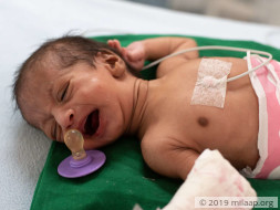 Baby of Jyoti needs your help to survive