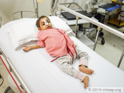 Help Rudra Fight Biliary Atresia with a lifesaving Liver Transplant