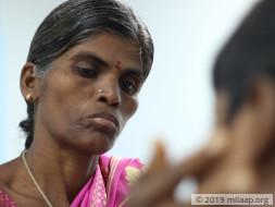 Help Bhavi Shree Fight Acute Promyelocytic Leukemia