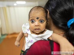 Help Baby of Namasvi Undergo AV Canal Defect Repair Surgery