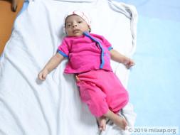 Help Baby Mohammed Hamza Undergo A Cardiac Surgery