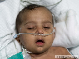 Help Baby of  Chandra Shakar Recover From Pneumonia
