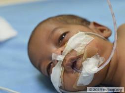 Help Baby of Priyanka Survive