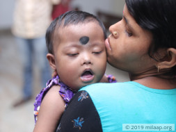 Help Puja Haldar Undergo A Cardiac Surgery