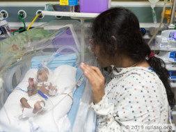 Help Our Twin Babies Survive