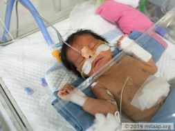 Help Swathi's Preterm Baby Survive