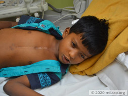 Help 7-year-old Gokul fight a severe heart disease