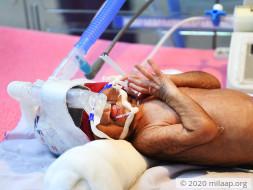 Help Kamala and Kallan save their premature twins