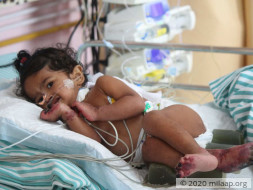 10-Month-Old Baby Girl Will Lose Her Limbs And Life To Gangrene