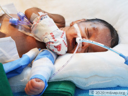 Premature Baby Girl With Underdeveloped Vital Organs Needs Urgent Help