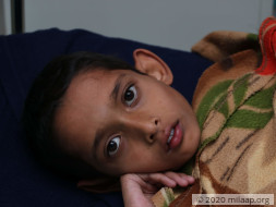 A Cancerous Tumour Has Been Growing In This Boy's Body For 5 Years