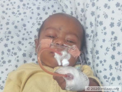 Help Amala's Baby Fight Infantile Dengue With Severe Pneumonia