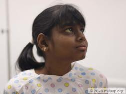 Help Sakshi Undergo A Liver Transplant