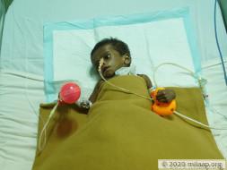 Help Baby Rabeeh Fight Extra Hepatic Biliary Atresia