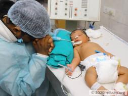 Help Rakhi's Baby Fight Multi Organ Dysfunction