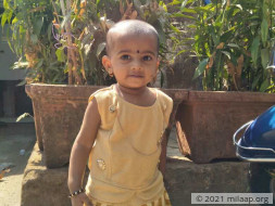 Help 1-Year-Old Diksha Get A Life-Saving Heart Surgery