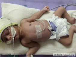 Help Baby of Mosarrat Survive