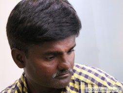 Help Nagaraj Undergo Open Heart Surgery