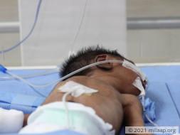 Help Baby of Saranya Recover