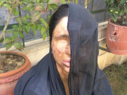 I am fundraising to help acid attack survivor Sheela